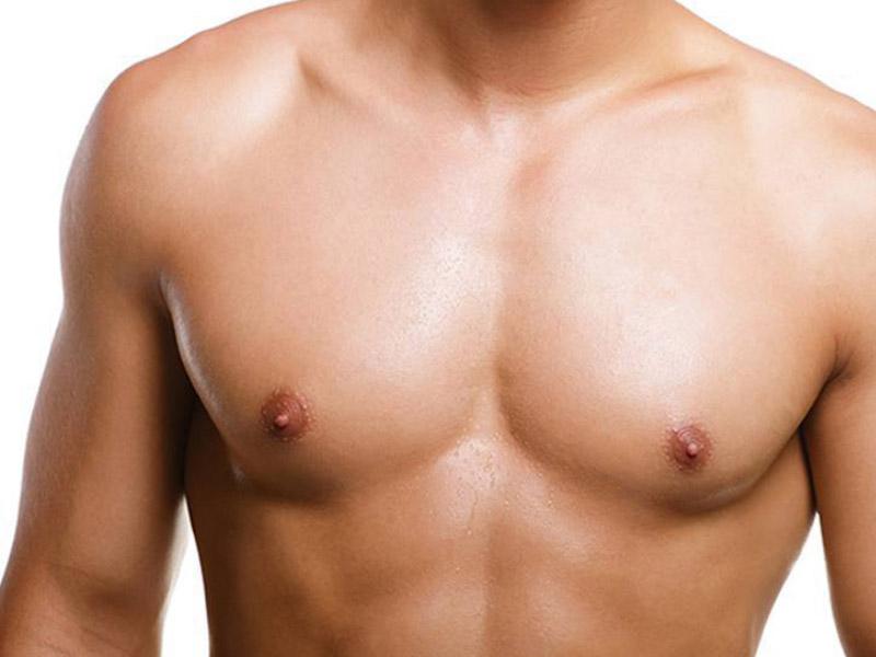 cirugia ginecomastia