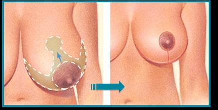 reducción mamaria de pecho