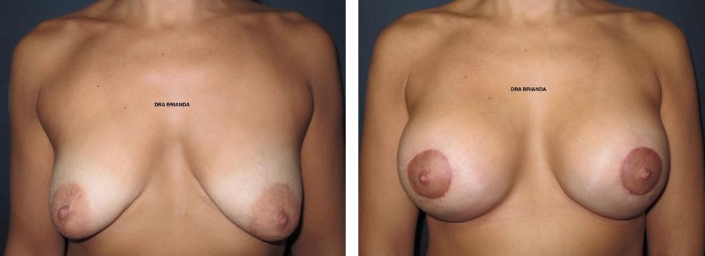 fotos de antes y despues cirugia plastica