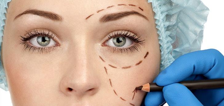 cirugia de parpados blefaroplastia